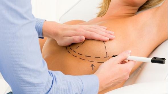 Brustimplantate-Skandal: TÜV muss vorläufig zahlen